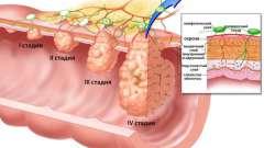 Як зцілити аденокарциному шлунка?