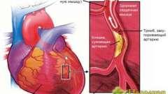 Як лікувати стенокардію серця використовуючи народні методи