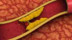 Як можна очистити судини від холестерину?