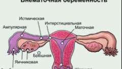 Як визначити ознаки позаматкової вагітності?