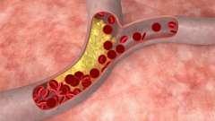 Як знизити холестерин в домашніх умовах?