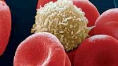 Як підвищити лейкоцити в крові після курсу хіміотерапії?