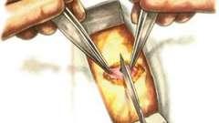 Як проходить лікування апендициту при вагітності?