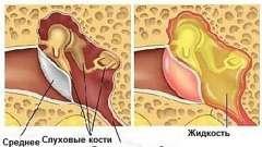 Як проявляється отит і тубоотит у малюків