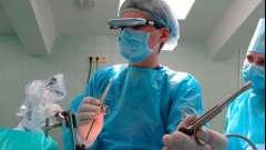 Як проводиться лапароскопія маткових труб