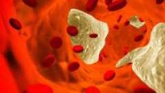 Як зменшити рівень холестерину в крові?