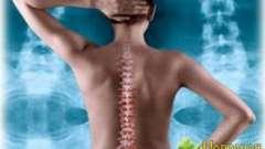 Як вчасно помітити остеохондроз і зберегти здоров`я хребта