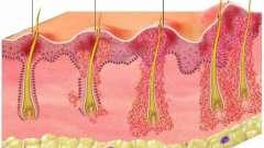 Як вилікувати виник під пахвою фурункул