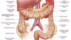 Симптоми і лікування раку товстої кишки