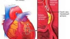 Які ознаки стенокардії? Симптоми і діагностика.