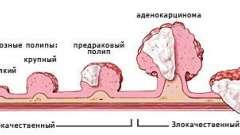 Лікування та прогноз при аденокарцинома прямої кишки