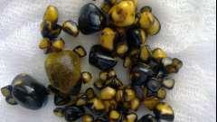 Камені в жовчному міхурі: погана вода або ожиріння організму