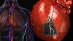 Постінфарктний кардіосклероз і його лікування