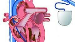 Кардіостимулятор: види, показання, операція по установці, життя з екс, прогноз