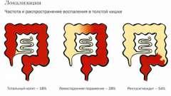 Катаральний коліт кишечника: легко вилікувати?