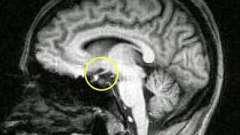 Кіста гіпофіза: симптоми, лікування