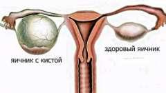Кіста яєчника при вагітності