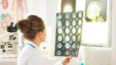 Коли слід звернутися до лікаря невролога: у чому він допоможе?