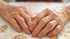 Лікування артриту суглобів рук