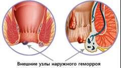 Лікування геморою ефективними засобами