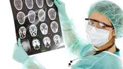 Менінгіома головного мозку: наслідки після операції