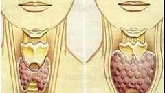 Методи лікування гіпотиреозу народними засобами у жінок