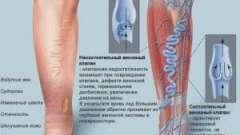 Методи лікування тромбофлебіту глибоких вен нижніх кінцівок. Види важкої форми хвороби. Фото.
