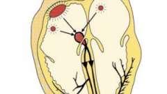 Міграція водія ритму: причини, симптоми, діагностика, лікування