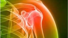 Народне лікування суглобів