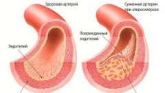 Народні засоби від атеросклерозу судин нижніх кінцівок