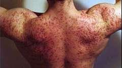 Про вплив тестостерону на випадання волосся, поява прищів і інших його діях на організм