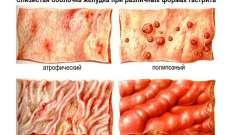 Найбільш ефективні ліки від гастриту
