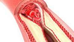 Оклюзія артерій