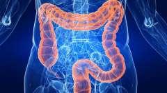 Чи небезпечний псевдомембранозний коліт: його симптоми і можливе лікування