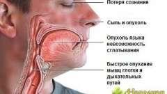 Небезпечне для життя стан: прояви анафілактичного шоку і профілактика засобами народної медицини