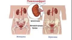 Основні поняття пієлонефриту нирок