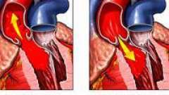 Особливості аортальнийнедостатності і її ступеня