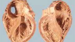 Особливості вторинної кардіоміопатії і її лікування