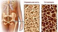 Остеопороз - головна причина переломів
