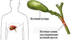 Гострий холецистит