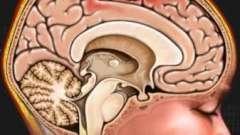 Набряк кісткового мозку