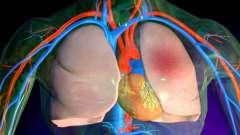 Набряк легень має безліч різноманітних причин