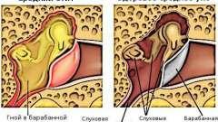 Отит середнього вуха: симптоми і лікування