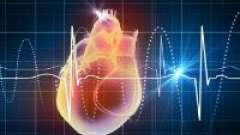 Парасистолія серця