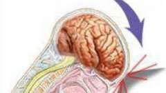 Перша допомога при струсі головного мозку