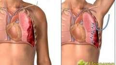 Чому хворий з пневмотороксом вимагає екстреної допомоги