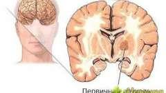 Підручні народні засоби при лікуванні пухлин головного мозку