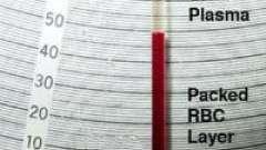 Показник гематокриту в крові і його значення