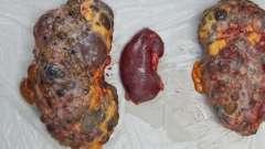 Що таке полікістоз нирок? Чи є способи одужання