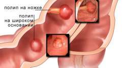 Поліп товстої кишки - осередкове розростання клітин